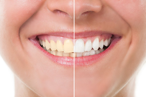 Zoom whitening middleboro